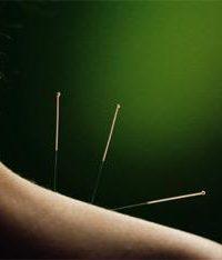 Acupuncture neck