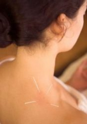 Acupuncture shoulder